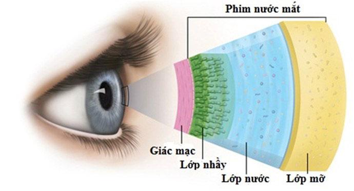 Bệnh khô mắt và cách điều trị 2