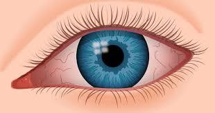 Mỏi mắt là gì ?